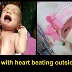 Heart outside the body