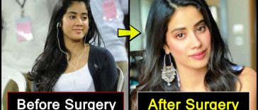 9 celebrities who changed dramatically after 'Plastic Surgery', details inside