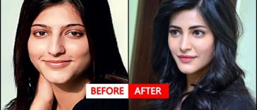 11 B'wood Actress Who Have Allegedly Undergone Plastic Surgery