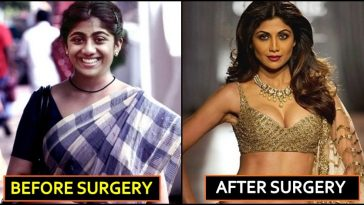 7 Bollywood Actresses Who Underwent Breast Implant Surgery
